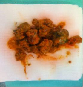 Kalsium Penyebab batu karang