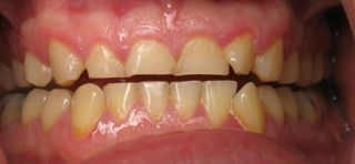 http://www.stomartstudio.ru/images/stories/bruxism_teeth.jpg