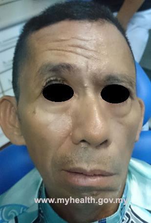 symptoms of facial paralysis attack