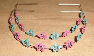 Fake Braces1