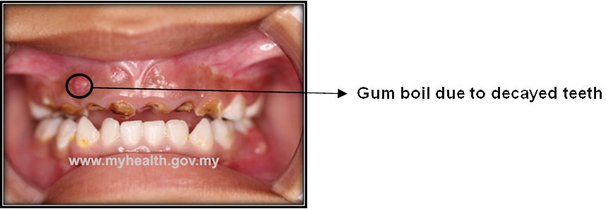 Gum Boil In Children - PORTAL MyHEALTH
