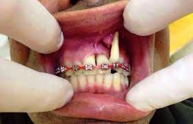 Image result for fake braces malaysia