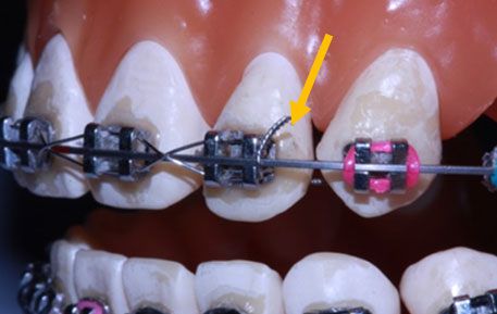 Are You Wearing Braces? - PORTAL MyHEALTH