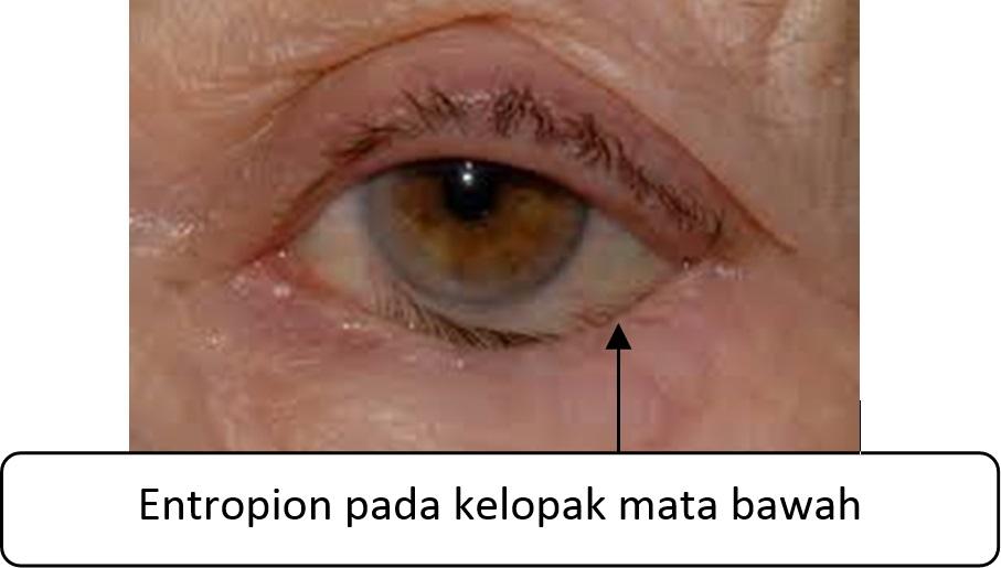 Kedudukan Kelopak Mata Yang Tidak Normal Portal Myhealth