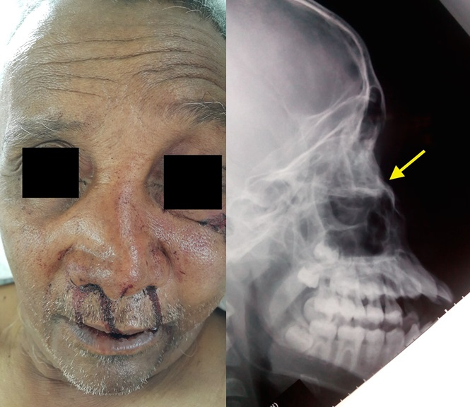 Nasal Bone Fracture - PORTAL MyHEALTH