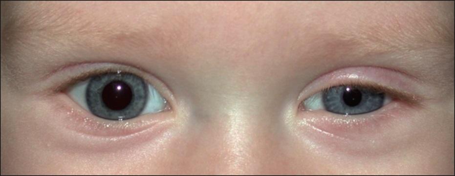 Особенно быстрое действие орлиум показал на ранних стадиях снижения зрения.