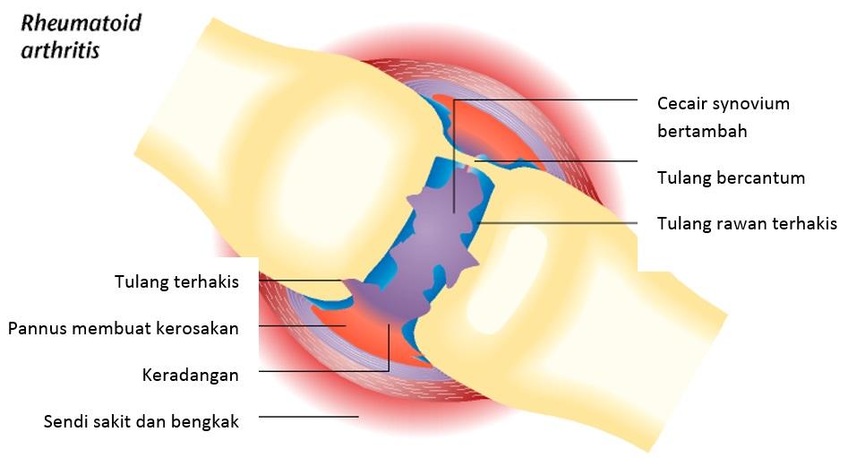 Cara terapi osteoarthritis