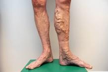 varicoză bloodstocks pe picioare