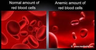Anaemia In Adolescent