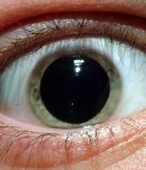 Anak mata membesar