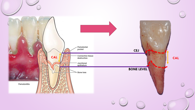 CAL= clinical attachment loss