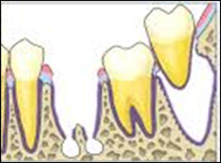 Cabutan gigi geraham pertama rahang bawah diikuti dengan cabutan gigi