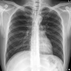 chest_x-ray_1
