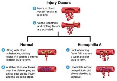 Example - Bleeding in normal person
