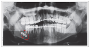 Fracture-of-Mandible-associated-with-Third-Molar-Surgery