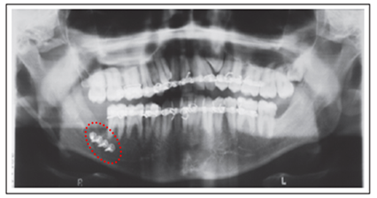 Fracture of Mandible associated with Third Molar Surgery