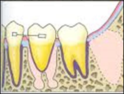 Gigi geraham ketiga rahang bawah yang telah dicabut dipindahkan ke dalam soket