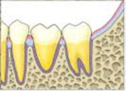 Gigi transplan yang sudah sembuh