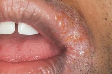Herpes labialis