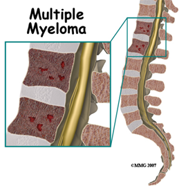 multiple_myeloma_4a