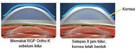 Orthokeratology (Ortho-K)2