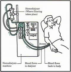 hemodialisis portal myhealth  dua jarum khas dicucuk ke dalam fistula untuk mengalirkan darah dan disambungkan ke mesin hemodialisis melalui tiub darah satu jarum untuk mengalirkan