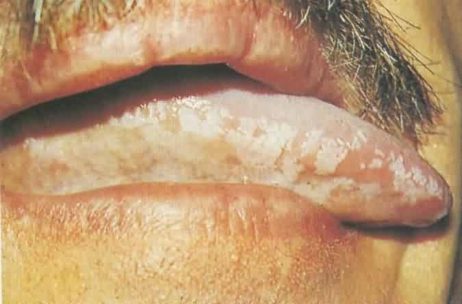 Penyakit Jangkitan Kelamin 9 Portal Myhealth