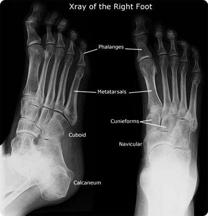 pemeriksaan_x-ray_kaki_2
