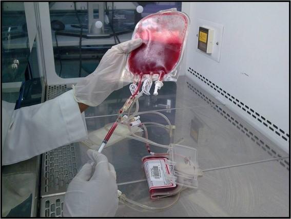 Pemprosesan dan Penyimpanan Darah Tali Pusat3