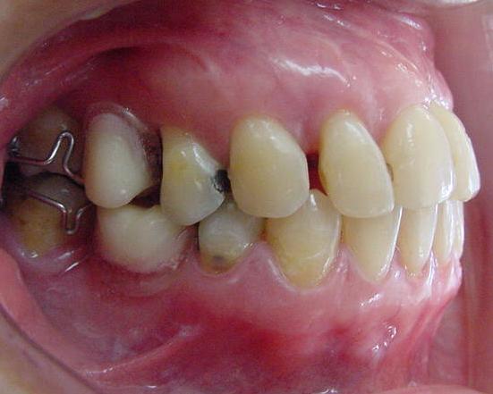 Penyusunan gigi dengan braces untuk memudahkan penggantian gigi3