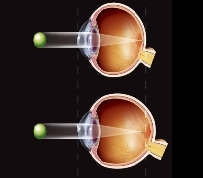 Perbezaan antara saiz bola mata normal dan bola mata panjang