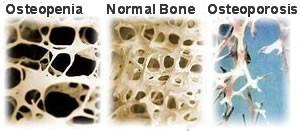 Perbezaan tulang normal, osteopenia dan osteoporosis