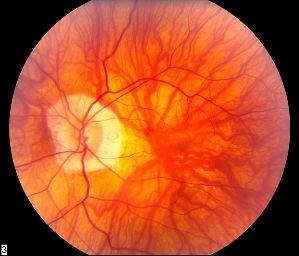 Pertumbuhan salur darah abnormal di lapisan koroid pada retina