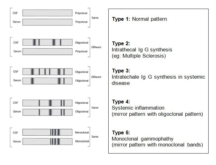 Protein Electrophoresis Portal Myhealth