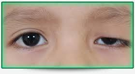 Ptosis (dull eye)