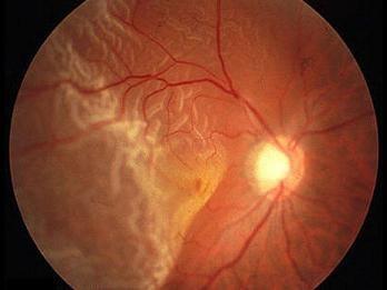 Retina tertanggal
