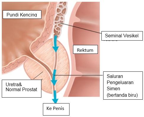 Retrograde ejaculation1(bm)