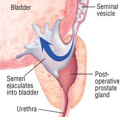Retrograde ejaculation2