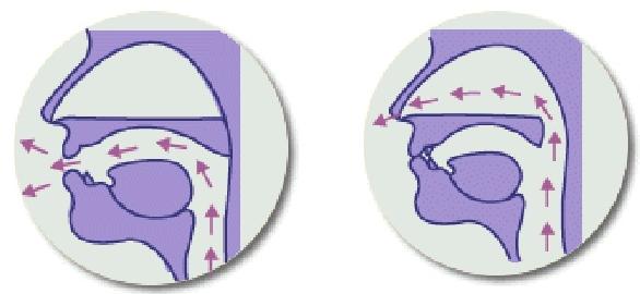 Sengau (hypernasal)