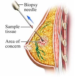 stereotactic_breast_biopsy_2