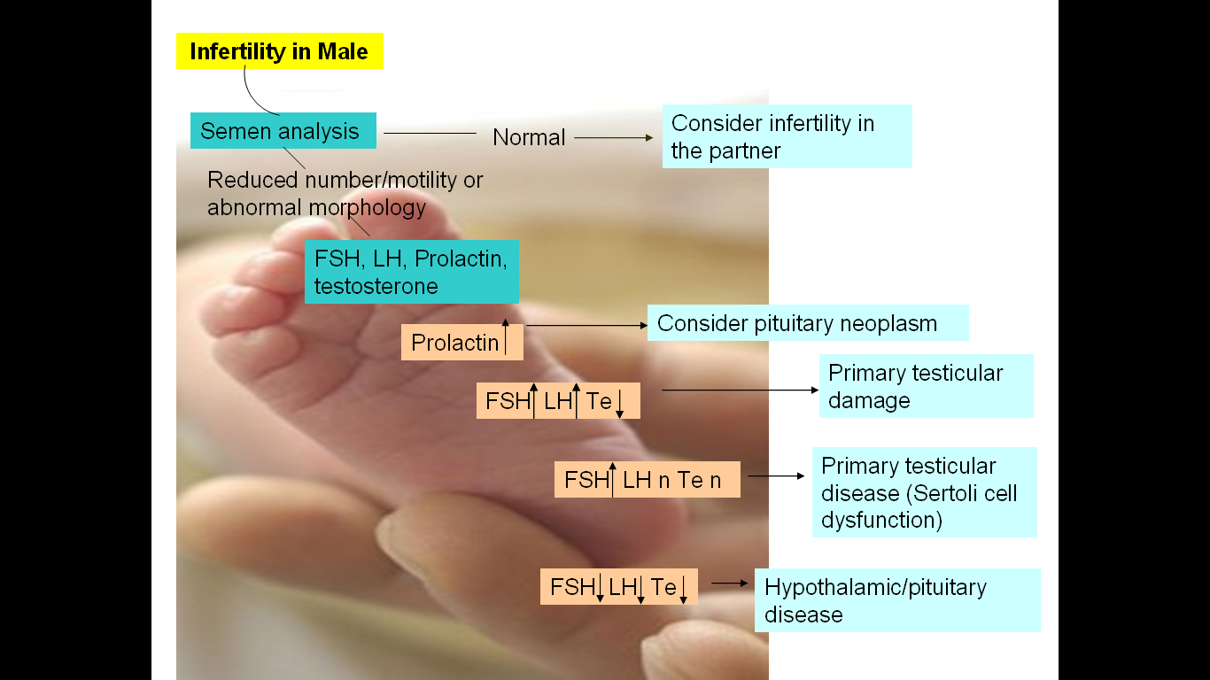 Suggested scheme for evaluation of infertile male