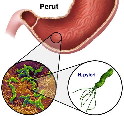 Tindakan H.pylori bersama asid hidroklorik menyebabkan ulser1