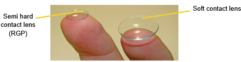 Types of contact lenses