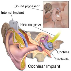 Understanding About Cochlear Implant