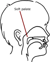 Velopharyngeal insufficiency (VPI)