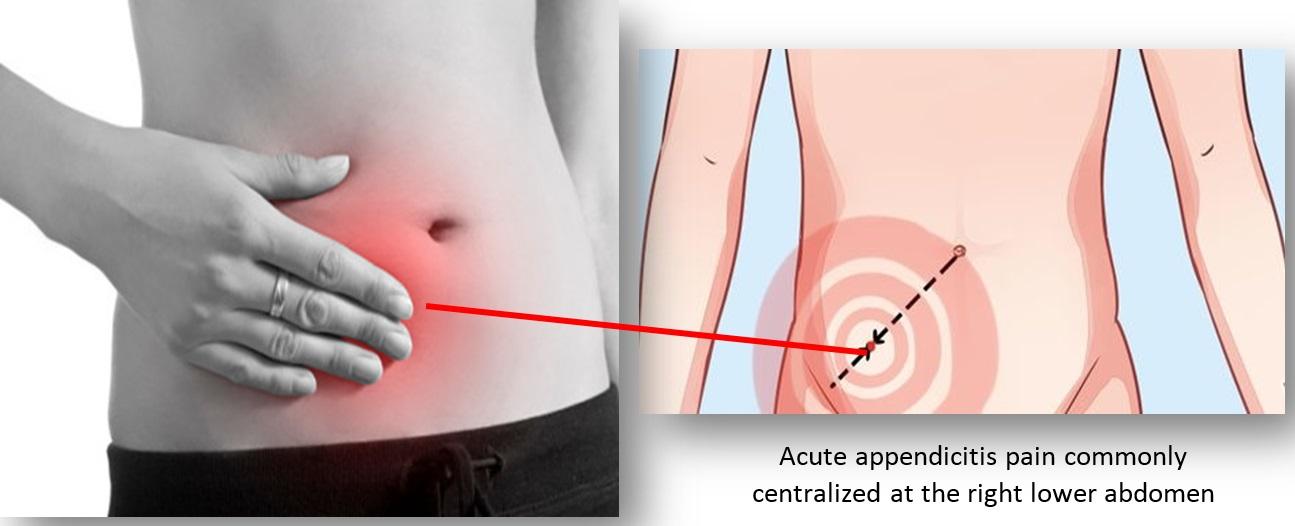 acute_appendicitis2