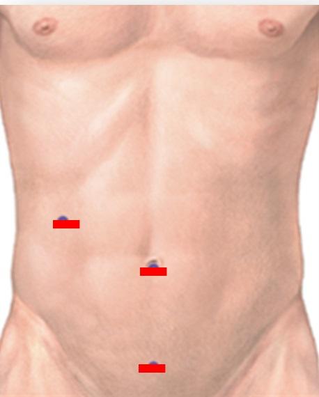 acute_appendicitis4