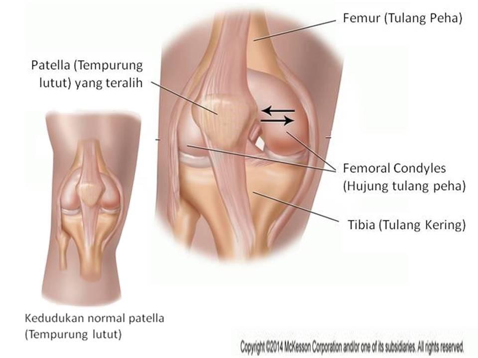 Pengurusan Fisioterapi Bagi Dislokasi Tempurung Lutut Portal Myhealth