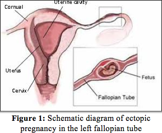 in women who are in the first 3 months of pregnancy  the number of  ectopic pregnancies is increasing, so it is important to understand more  about it