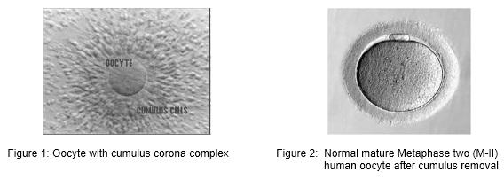 embrio_1